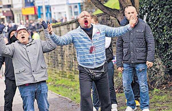 歐洲反難民「見血」 英瑞爆暴力衝突