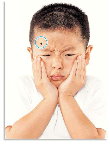 幼童除痣 風險高