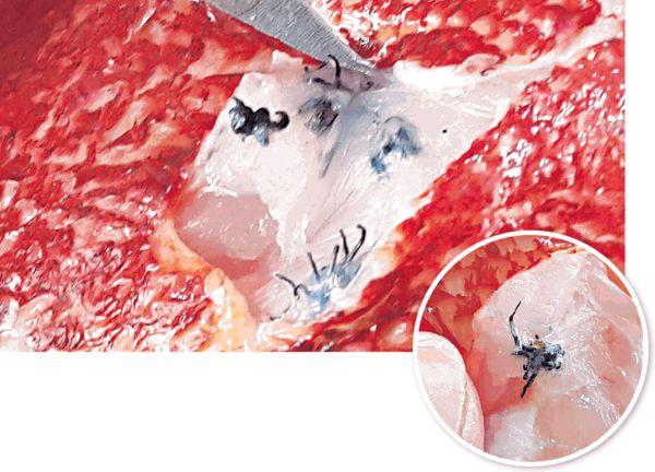 台深海魚驚現恐怖寄生蟲
