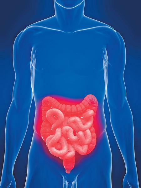 腸癌年輕化 一成未夠40歲