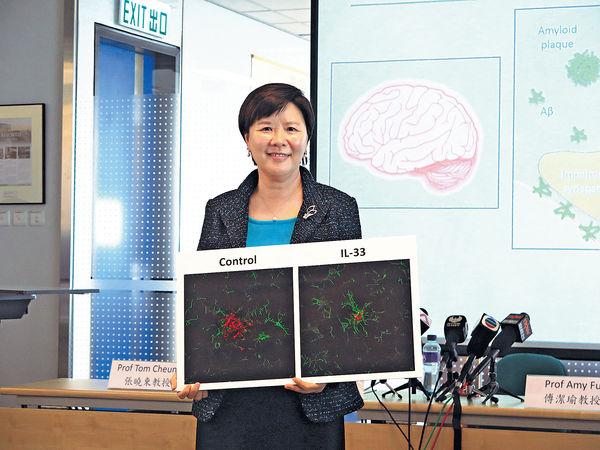 科大新發現 改善認知障礙