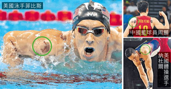 菲比斯奪金秘技 奧運選手拔罐熱