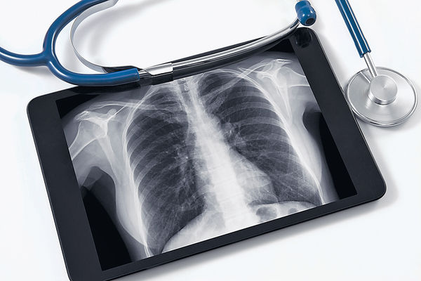 第二代標靶藥 減肺癌惡化
