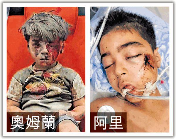 敘利亞受傷男童 10歲兄長不治
