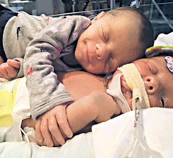 兄弟罕症夭折 雙胞胎初相擁成追憶