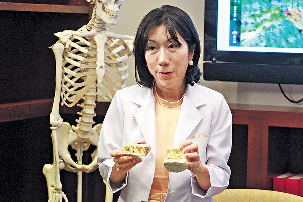 更年期須查骨質密度 防患骨鬆