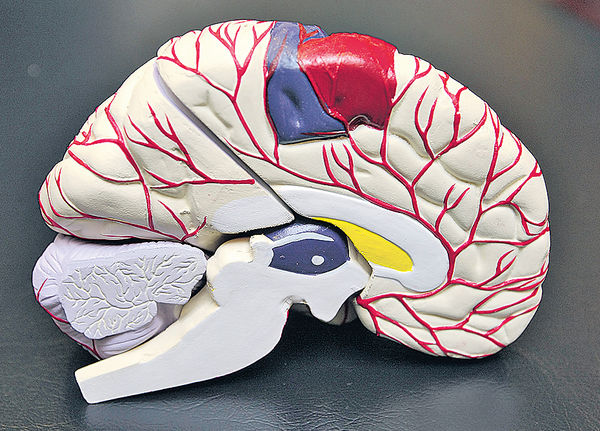 患偏頭痛 增手術中風機會