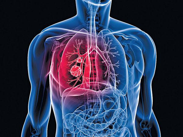 中大新標靶藥 助肺腺癌病人延壽