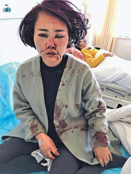 粵女遊麗江 慘遭暴打毀容