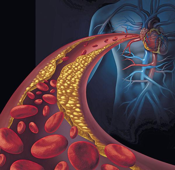 港大新藥 醫治家族性高膽固醇更有效