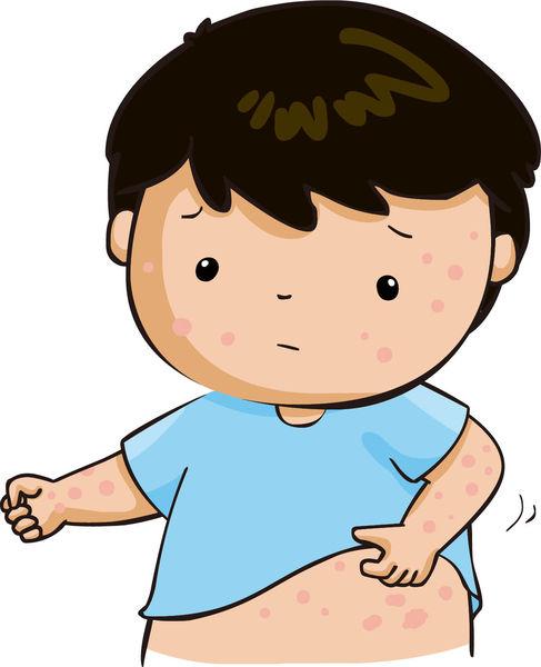 兒童過敏性濕疹 持續保濕最緊要