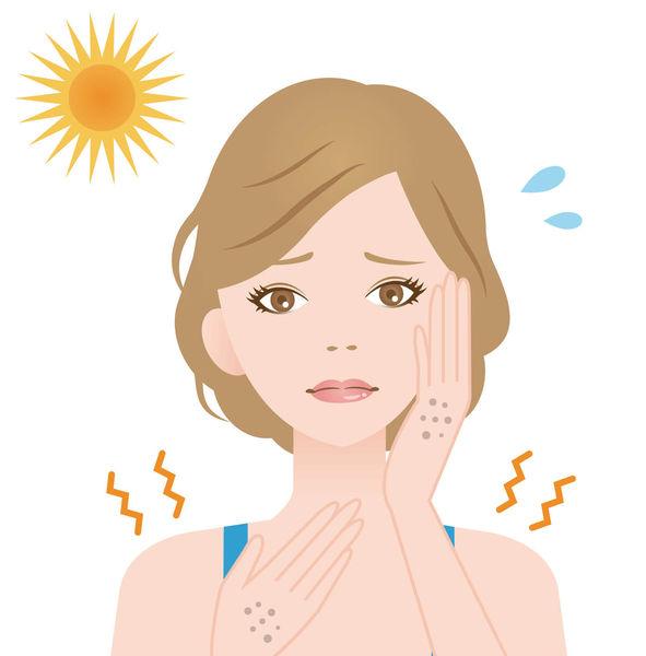 暴曬後皮膚局部出黑斑 疑患「光敏感」