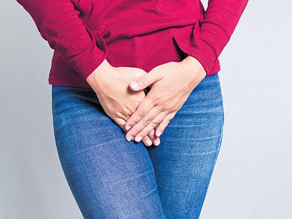 大腸膀胱「相通」 致泌尿道反覆感染