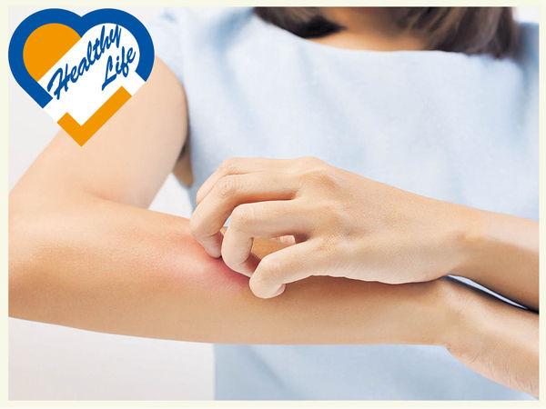 風疹無關吹風 免疫力降致病