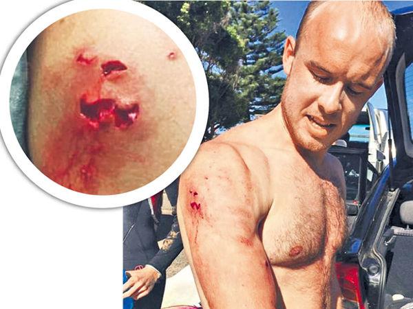 悉尼滑浪遇鯊魚 英醫生打鼻逃生