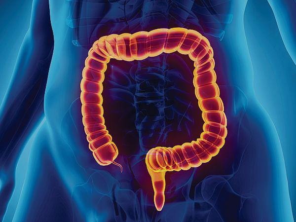 大腸癌篩查 揪出近300人中招