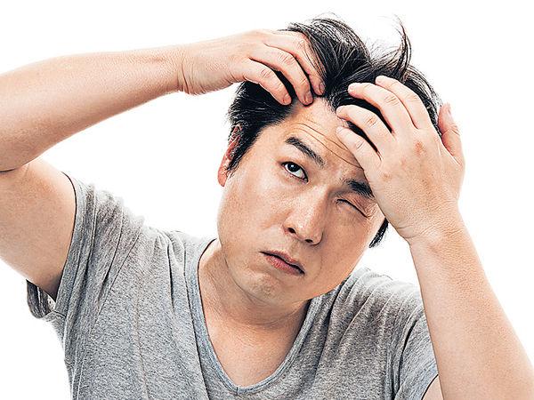 男士40歲前脫髮 更易心臟病