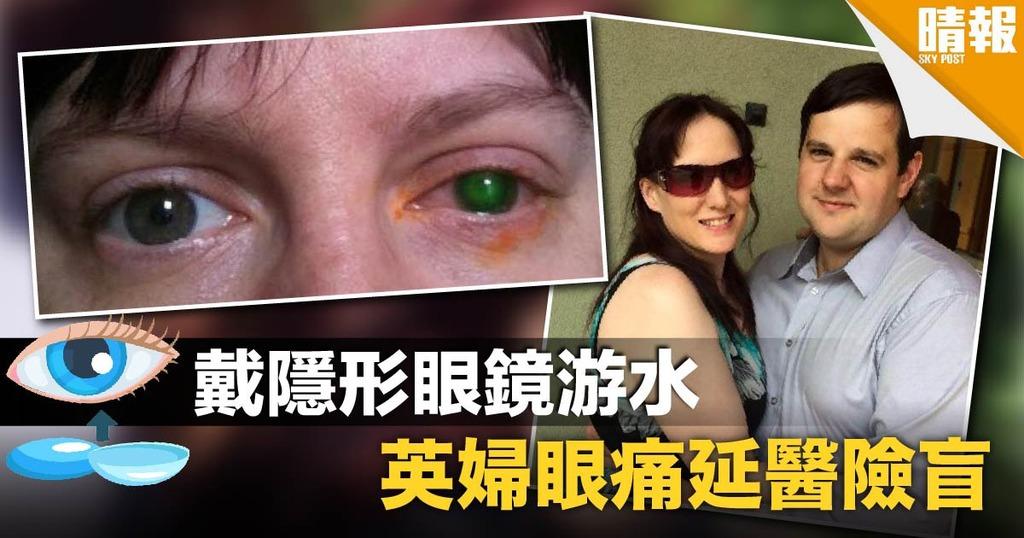 戴隱形眼鏡游水 英婦眼痛延醫險盲