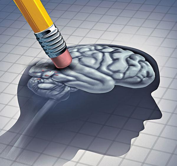 研移除「殭屍細胞」 逆轉腦退化