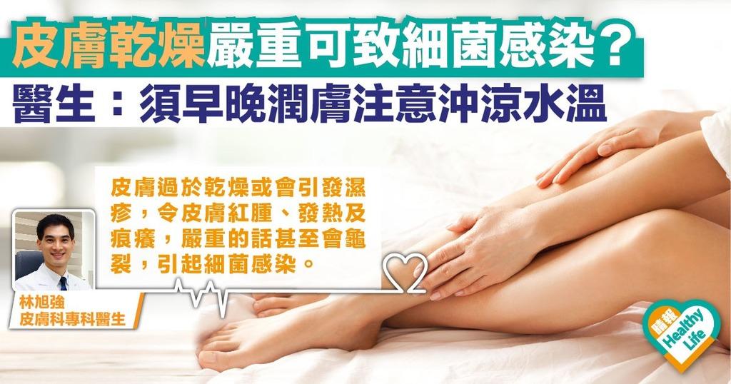 秋季皮膚乾燥致紅腫龜裂? 醫生提醒:沖涼後立即塗潤膚產品