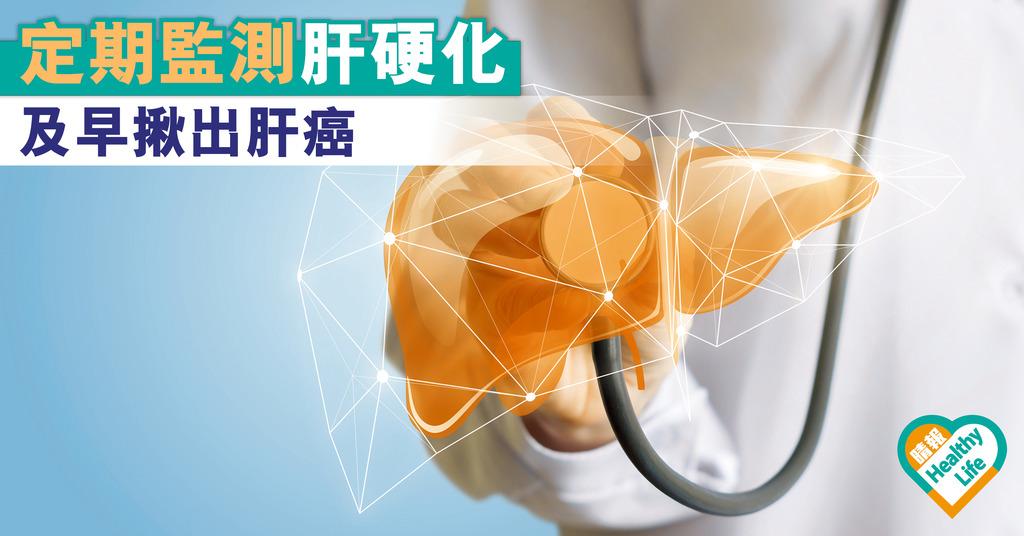 定期監測肝硬化 及早揪出肝癌