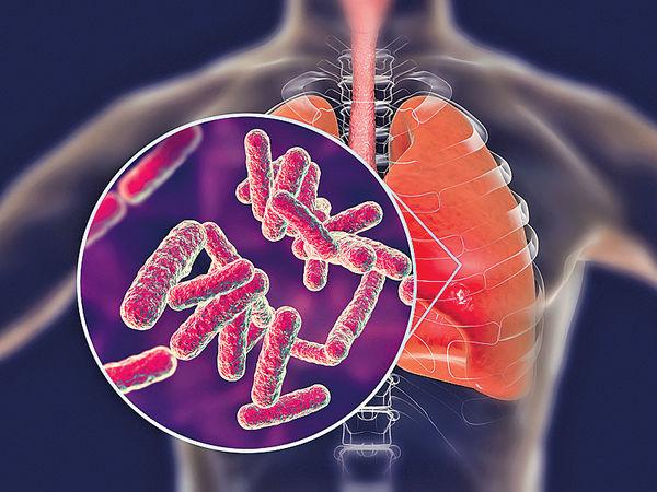 新療法「餓死」細菌 治抗藥性結核病