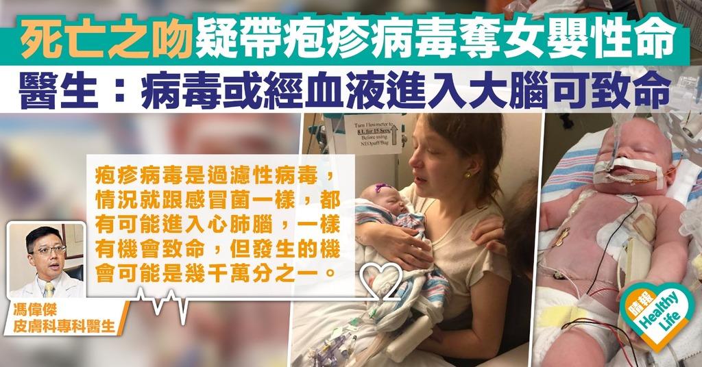【不要親寶寶】女嬰被疑帶疱疹病毒之吻奪命 醫生籲勿亂親初生嬰兒