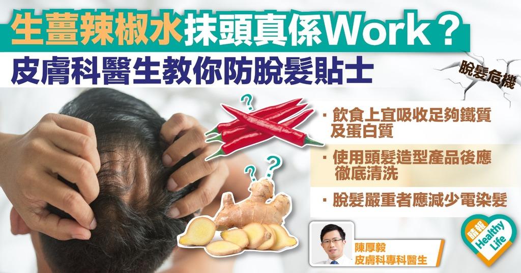 生薑辣椒水生髮偏方咪亂試 斑秃延遲治療可致毛囊炎