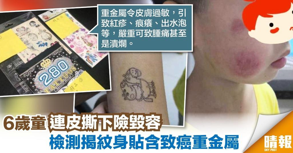 6歲童玩紋身貼紙險毀容 研究檢測:含致癌重金屬