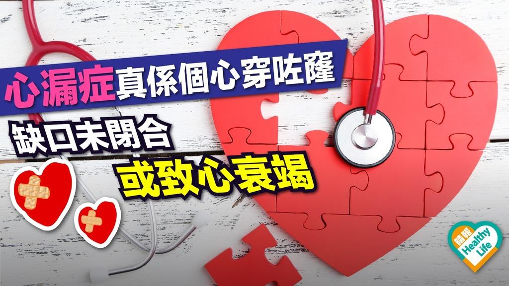 心漏症干擾血液正常循環 致心臟衰竭難以自知