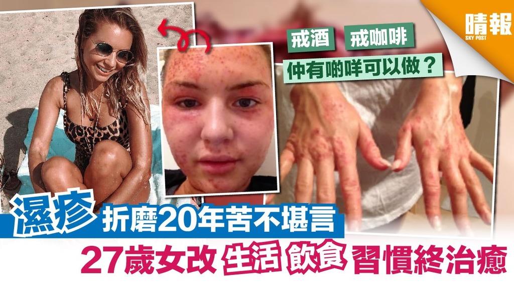 濕疹折磨20年苦不堪言 27歲女改生活飲食習慣終戰勝