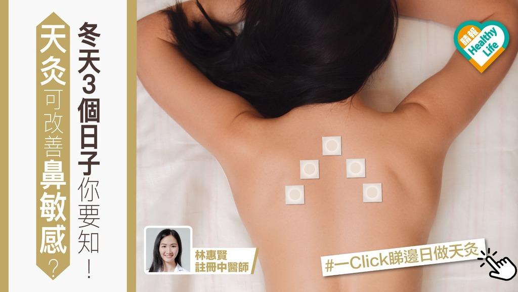 天灸調整經絡臟腑 可改善鼻敏感經痛風濕關節痛