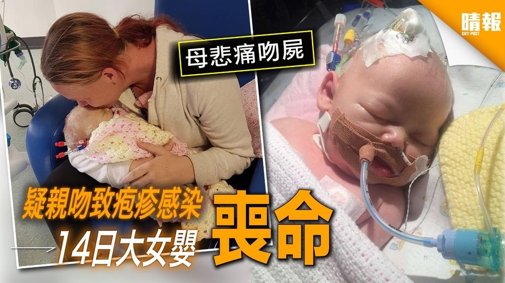 14日大女嬰染疱疹亡 媽媽崩潰籲不要親吻嬰兒