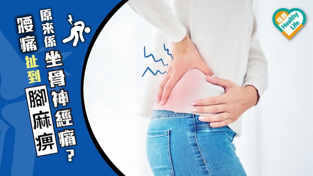 腰痛扯到腳麻痹 隨時是坐骨神經痛先兆