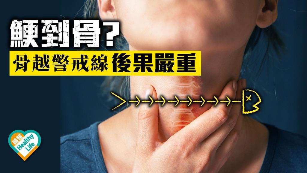 鯁骨越警戒線 或致食道發炎