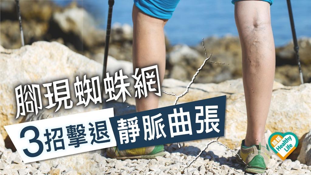 常站久坐易有靜脈曲張 3招還原美腿