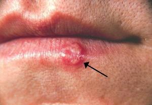 【唇瘡】朱古力中的精氨酸致唇瘡 11種治療和引發唇瘡食物
