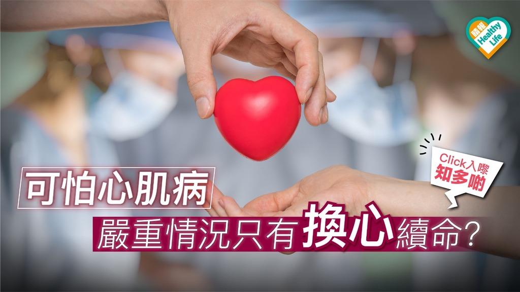 可怕心肌病 嚴重情況需心臟移植