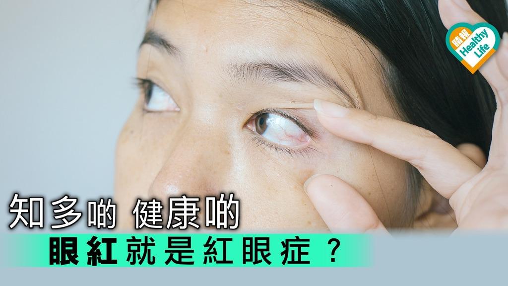 紅眼症易傳播 6點措施要做足