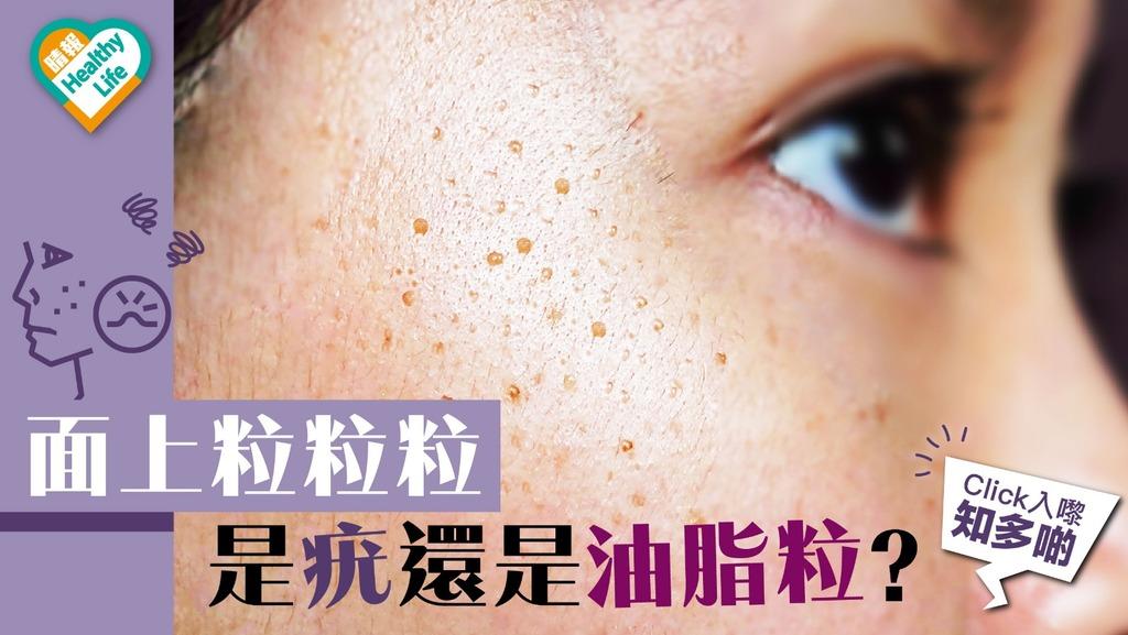 面上滿佈粒粒 是疣病毒還是油脂粒?