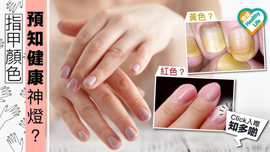 指甲顏色可預知患病先兆