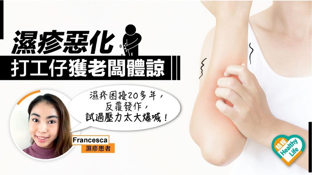 濕疹惡化 打工仔獲准在家工作 皮膚科醫生:壓力大瞓得差痕上加痕
