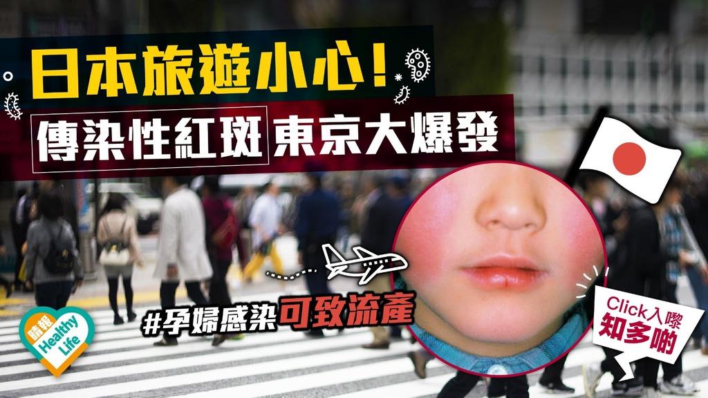 日本旅遊小心! 傳染性紅斑(蘋果病)東京大爆發 孕婦感染可致流產