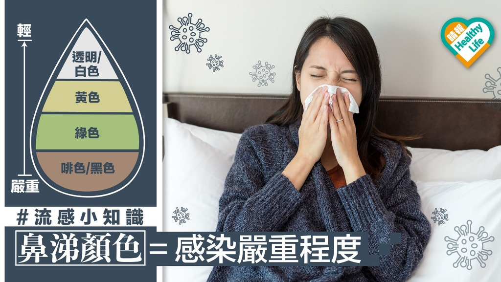 【流感肆虐】六種鼻涕顏色反映感染階段