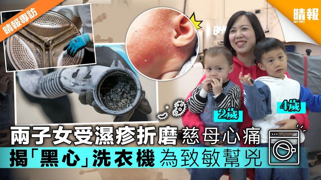 【擊退濕疹】兩子女受盡濕疹折磨 揭「黑心」洗衣機為致敏幫兇