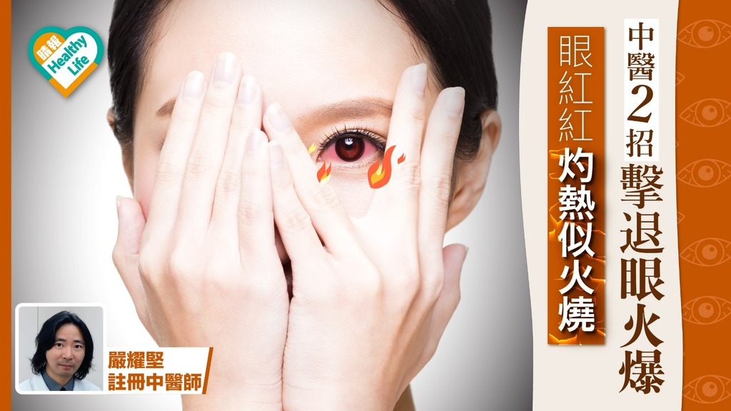 眼紅紅又發燒 肝火盛致眼球微絲血管出血