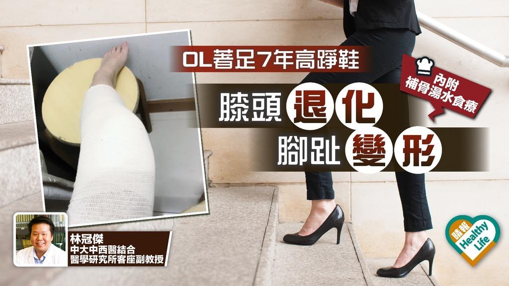 OL著高踭鞋7年膝頭嚴重勞損 中醫︰穴位按摩可紓緩