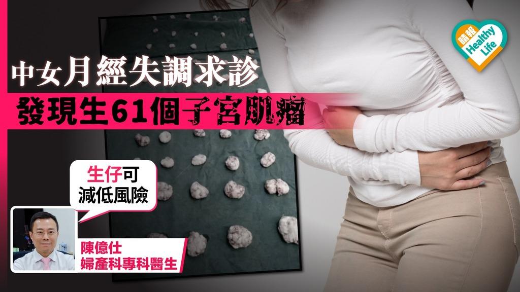 中女月經失調求診 發現生61個子宮肌瘤
