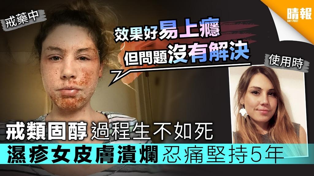 戒類固醇過程生不如死 濕疹女皮膚潰爛忍痛堅持5年