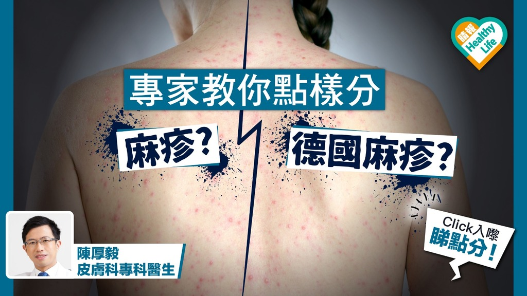 醫生教你分辨麻疹、德國麻疹【內附一圖比較】